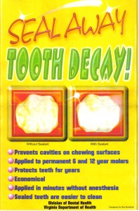 dental-sealants-seal-away-tooth-decay-poster (1)