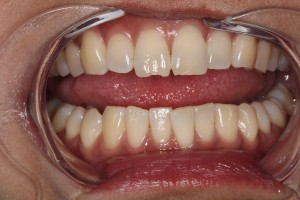Chipped_Front_Tooth_Cosmetic_by_Autumn_Lake_Dental