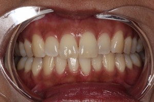 Chipped_Front_Tooth_Cosmetic_Dentist_by_Autumn_Lake_Dental