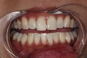 After_Composite_Whitening_by_Autumn_Lake_Dental