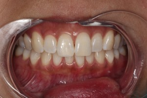 Composite_Whitening_by_Autumn_Lake_Dental
